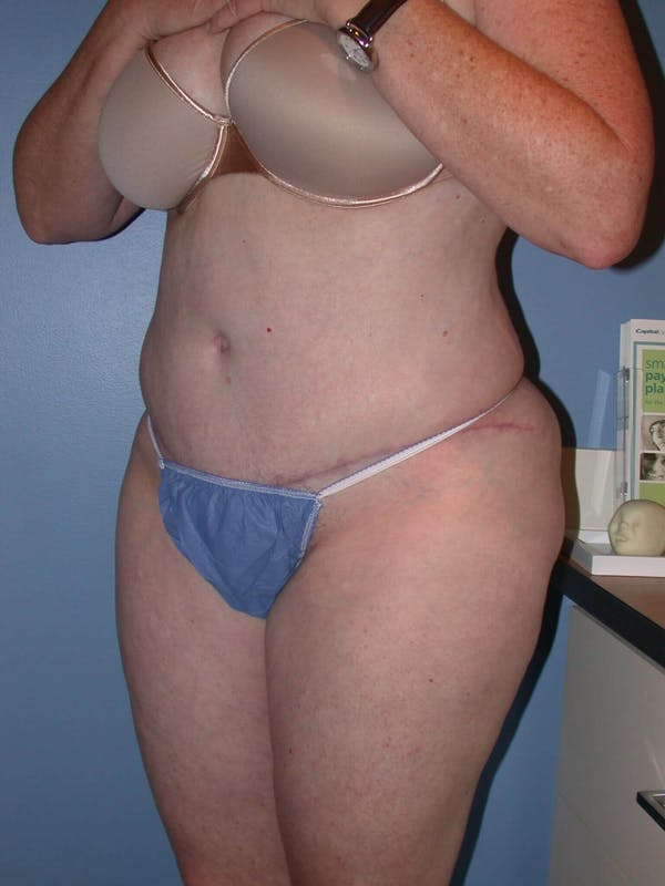 Tummy Tuck Gallery - Patient 4756884 - Image 8