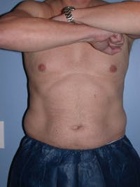 CoolSculpting Gallery - Patient 4756889 - Image 1