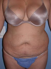 Tummy Tuck Gallery - Patient 4756890 - Image 1