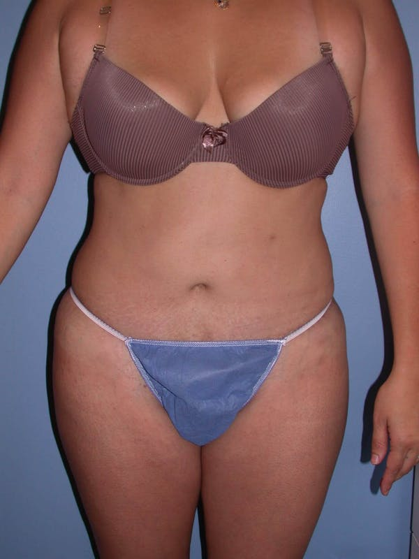 Tummy Tuck Gallery - Patient 4756890 - Image 2