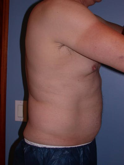 CoolSculpting Gallery - Patient 4756889 - Image 4