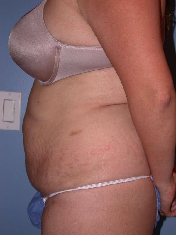 Tummy Tuck Gallery - Patient 4756890 - Image 3