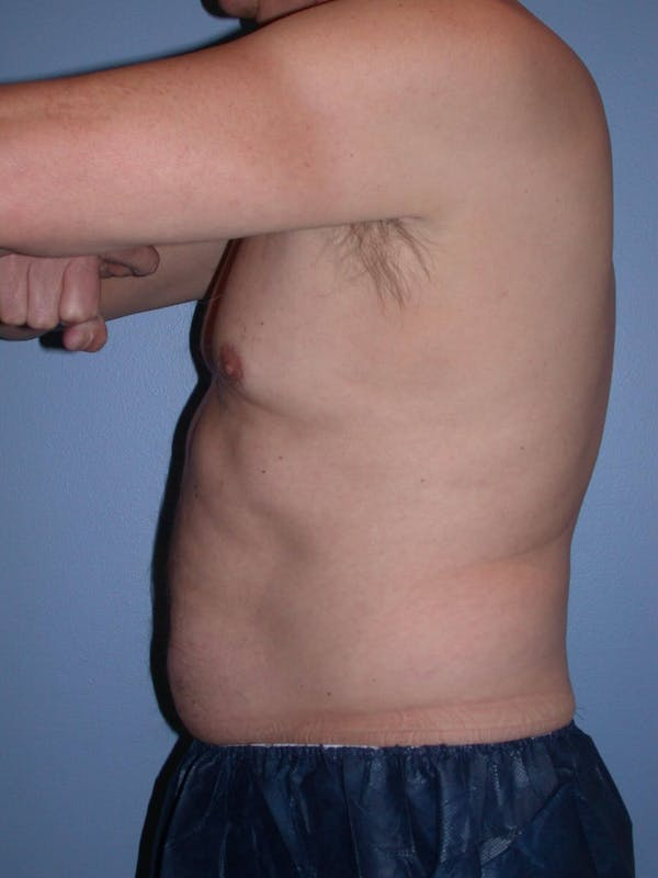 CoolSculpting Gallery - Patient 4756889 - Image 5