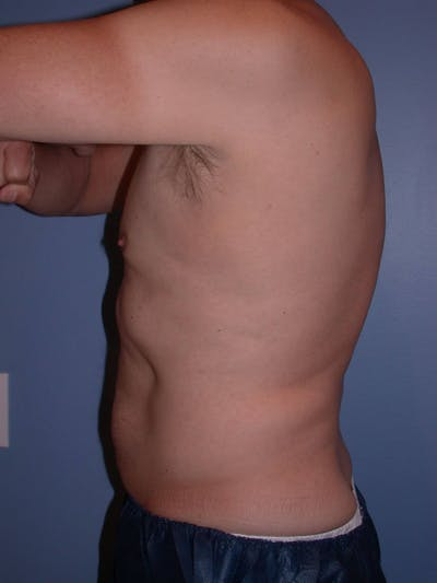 CoolSculpting Gallery - Patient 4756889 - Image 6