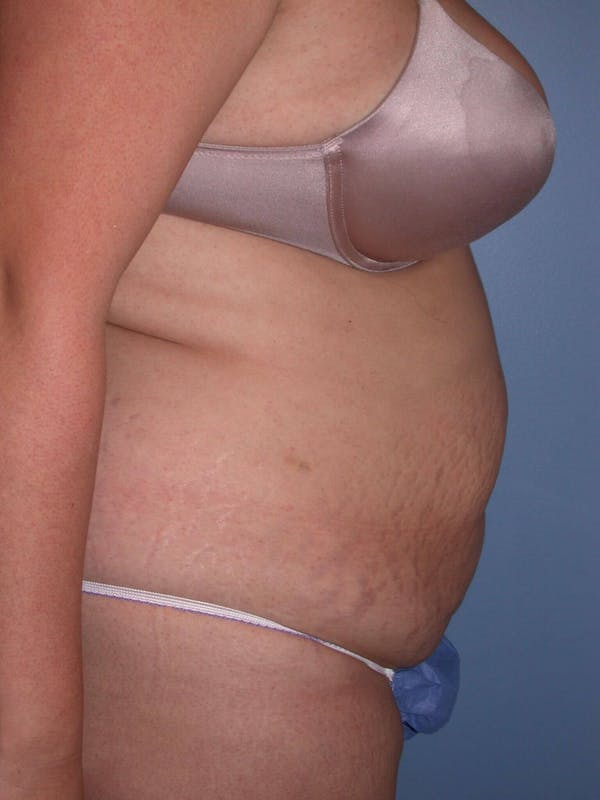 Tummy Tuck Gallery - Patient 4756890 - Image 5