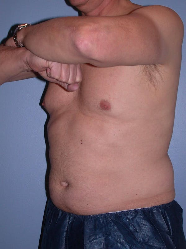 CoolSculpting Gallery - Patient 4756889 - Image 7