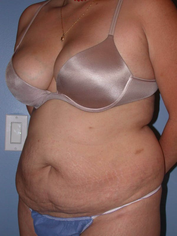 Tummy Tuck Gallery - Patient 4756890 - Image 7