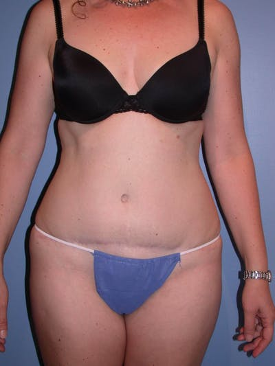 Tummy Tuck Gallery - Patient 4756894 - Image 2
