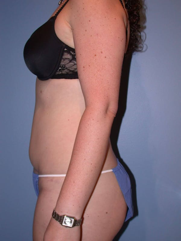 Tummy Tuck Gallery - Patient 4756894 - Image 6