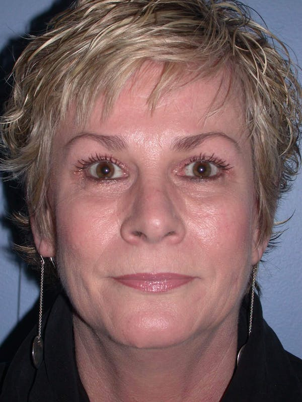 Brow Lift Gallery - Patient 4756900 - Image 2