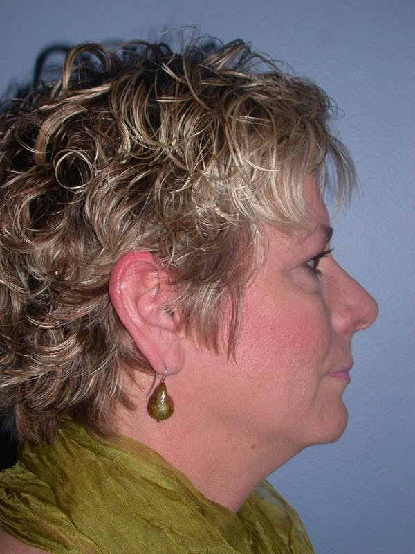 Brow Lift Gallery - Patient 4756900 - Image 3