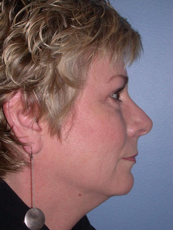 Brow Lift Gallery - Patient 4756900 - Image 4