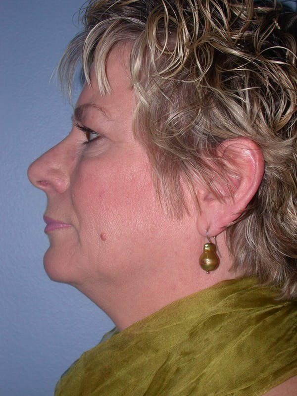 Brow Lift Gallery - Patient 4756900 - Image 5