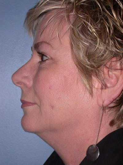 Brow Lift Gallery - Patient 4756900 - Image 6