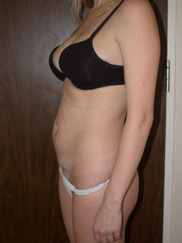 Tummy Tuck Gallery - Patient 4756902 - Image 5