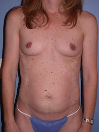 Tummy Tuck Gallery - Patient 4756905 - Image 1