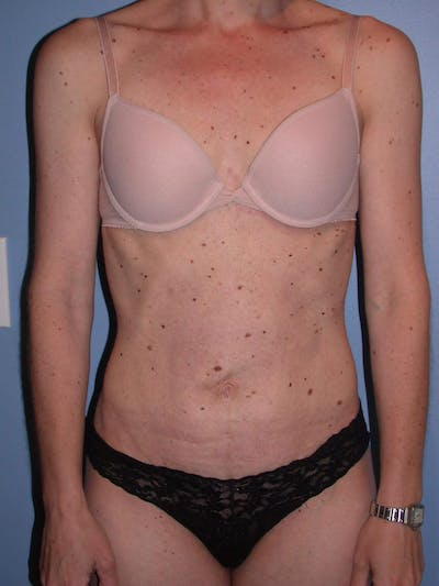Tummy Tuck Gallery - Patient 4756905 - Image 2