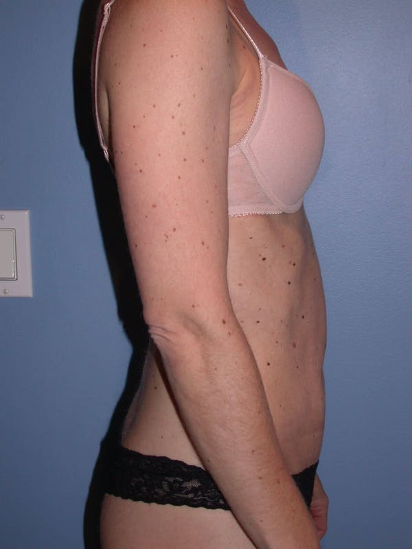 Tummy Tuck Gallery - Patient 4756905 - Image 4