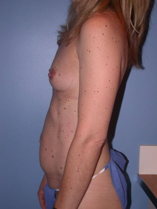 Tummy Tuck Gallery - Patient 4756905 - Image 5
