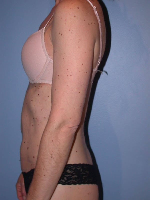 Tummy Tuck Gallery - Patient 4756905 - Image 6