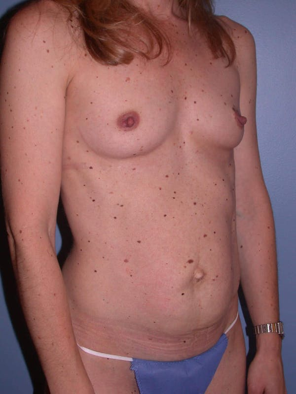 Tummy Tuck Gallery - Patient 4756905 - Image 7