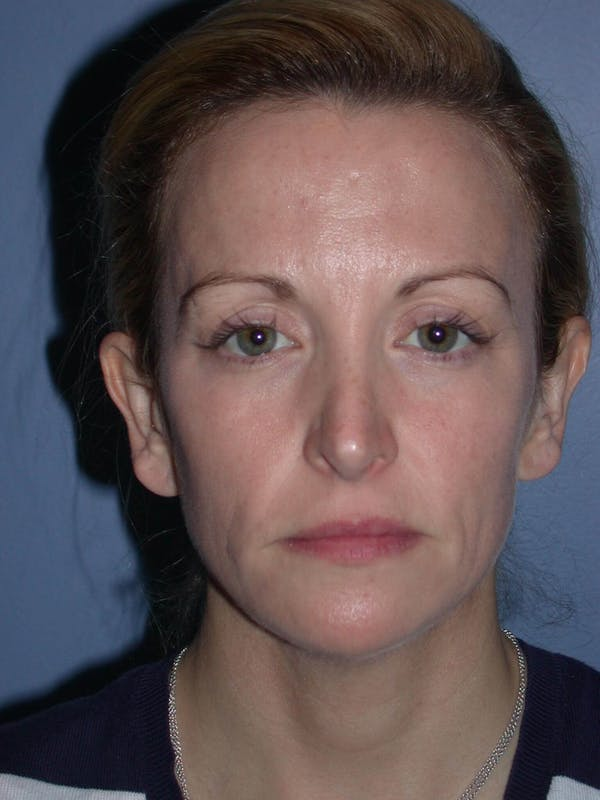 Eyelid Lift San Francisco Before and After
