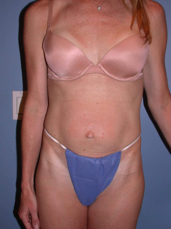 Tummy Tuck Gallery - Patient 4756911 - Image 1