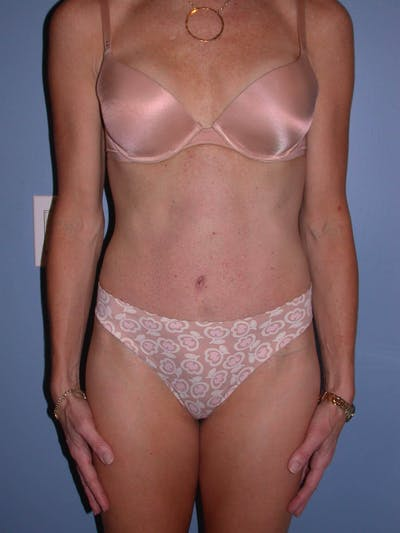 Tummy Tuck Gallery - Patient 4756911 - Image 2