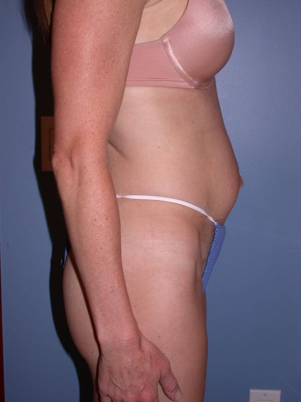 Tummy Tuck Gallery - Patient 4756911 - Image 3