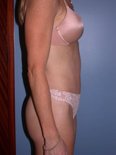 Tummy Tuck Gallery - Patient 4756911 - Image 4