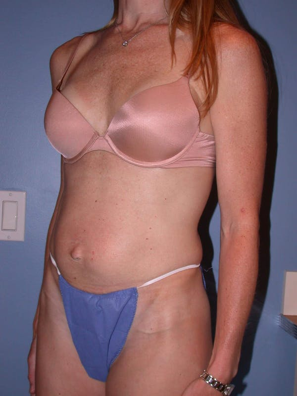 Tummy Tuck Gallery - Patient 4756911 - Image 7