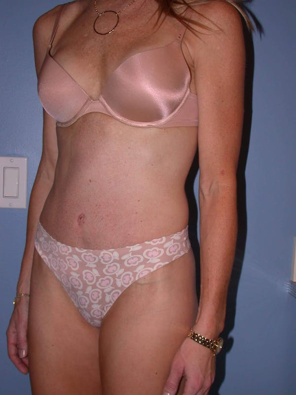 Tummy Tuck Gallery - Patient 4756911 - Image 8