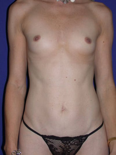 Tummy Tuck Gallery - Patient 4756925 - Image 1