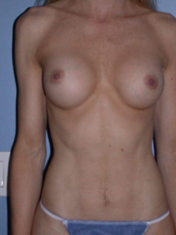 Tummy Tuck Gallery - Patient 4756925 - Image 2