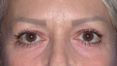 Eyelid Lift Gallery - Patient 4756924 - Image 1