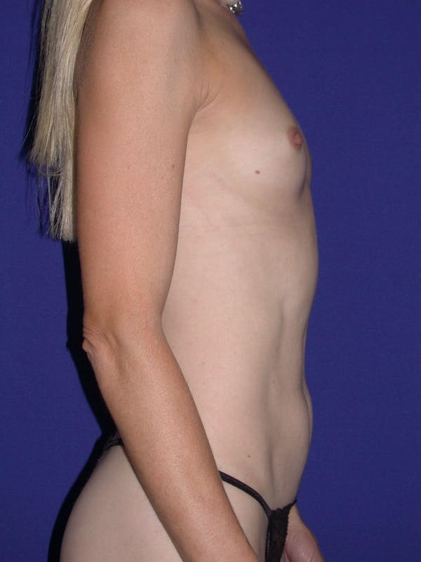 Tummy Tuck Gallery - Patient 4756925 - Image 3