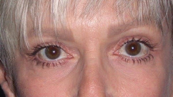 Eyelid Lift Gallery - Patient 4756924 - Image 2