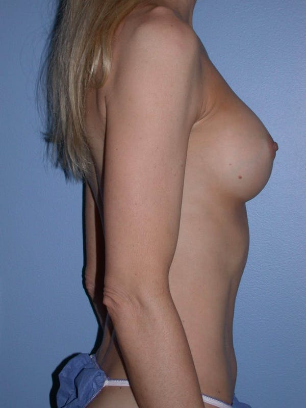 Tummy Tuck Gallery - Patient 4756925 - Image 4