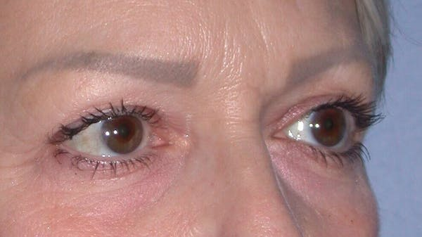 Eyelid Lift Gallery - Patient 4756924 - Image 3