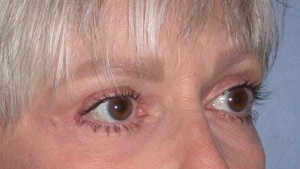 Eyelid Lift Gallery - Patient 4756924 - Image 4