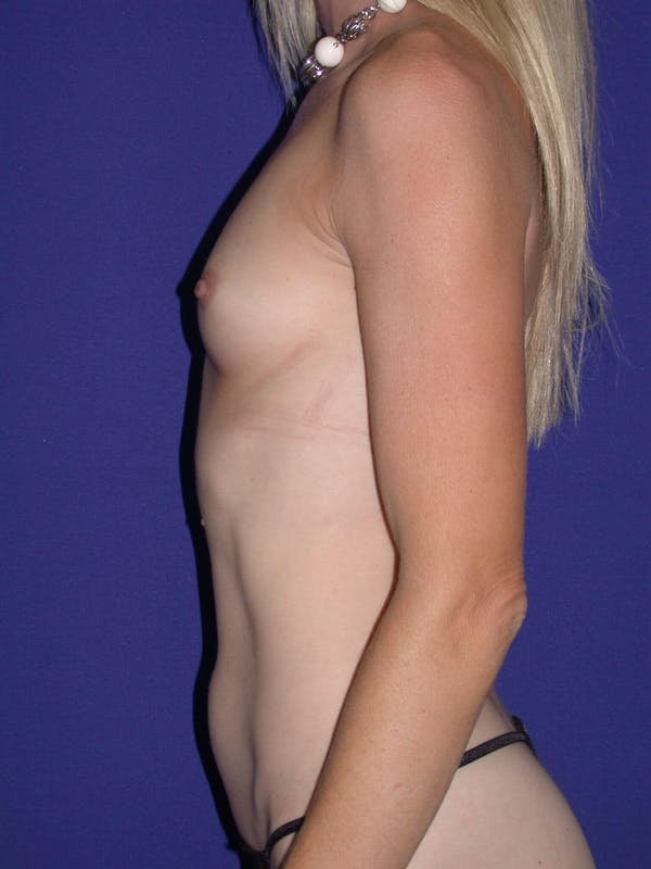 Tummy Tuck Gallery - Patient 4756925 - Image 5