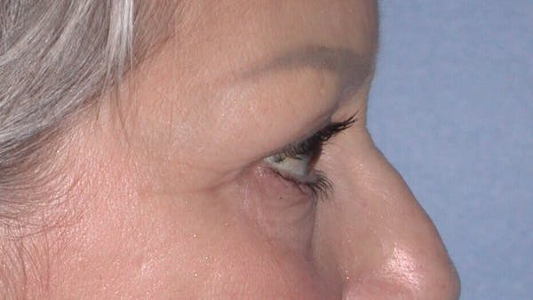 Eyelid Lift Gallery - Patient 4756924 - Image 5