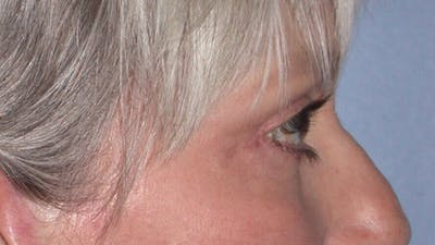 Eyelid Lift Gallery - Patient 4756924 - Image 6