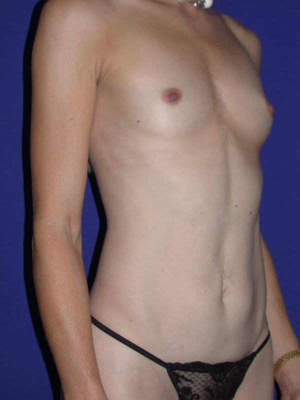 Tummy Tuck Gallery - Patient 4756925 - Image 7