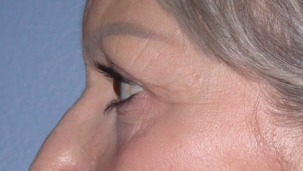 Eyelid Lift Gallery - Patient 4756924 - Image 7