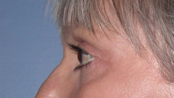 Eyelid Lift Gallery - Patient 4756924 - Image 8