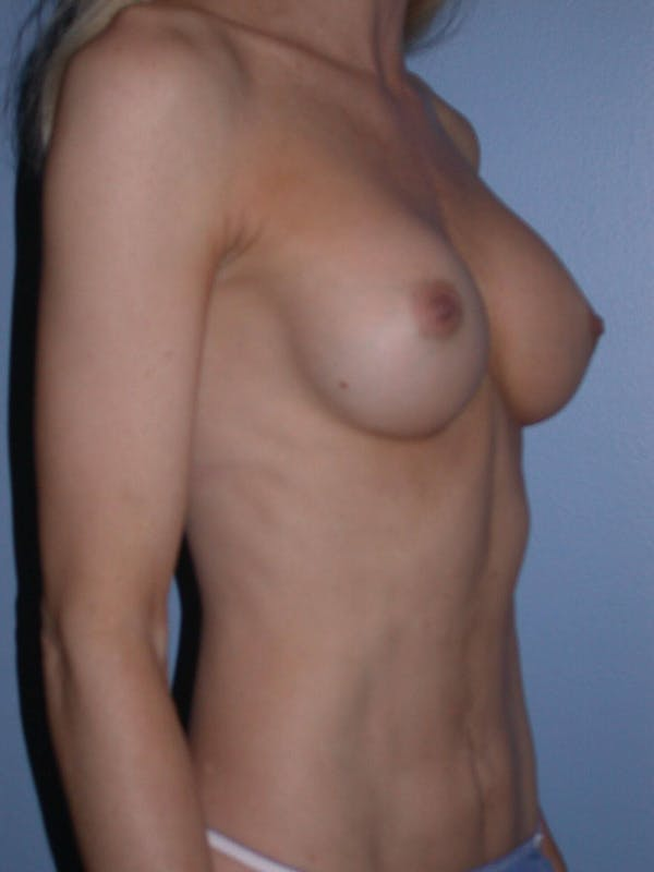 Tummy Tuck Gallery - Patient 4756925 - Image 8
