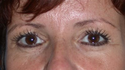 Eyelid Lift Gallery - Patient 4756929 - Image 1