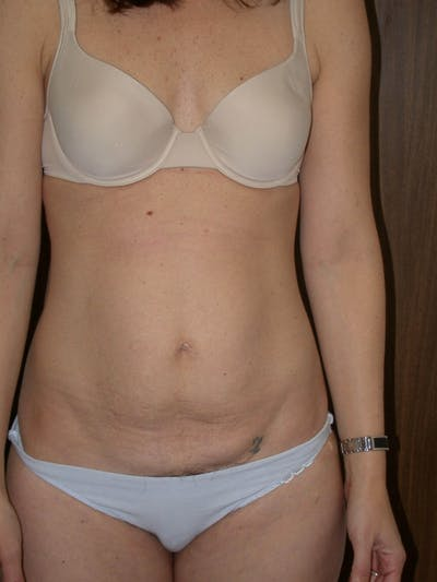 Tummy Tuck Gallery - Patient 4756931 - Image 1