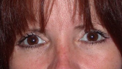 Eyelid Lift Gallery - Patient 4756929 - Image 2